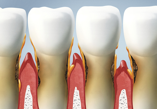 Treatments For Periodontal Diseases arvada dental center, co