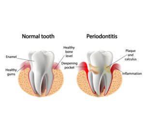 causes Periodontal Diseases arvada dental center,co
