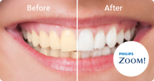 before and after teeth whitening Arvada Dental Center, CO