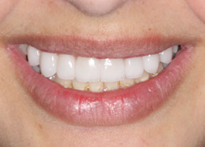 Arvada Dental Center - Smile Gallery Case 2 - Upper Veneers After Photo