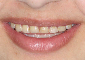 Arvada Dental Center - Smile Gallery Case 2 - Upper Veneers Before Photo