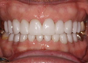 Arvada Dental Center - Smile Gallery Case 3 - Full Veneers After Photo