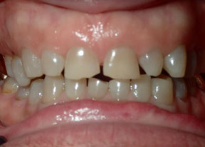 Arvada Dental Center - Smile Gallery Case 3 - Full Veneers Before Photo