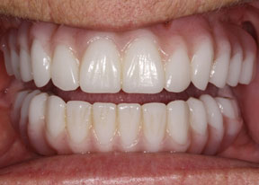 Arvada Dental Center - Smile Gallery Case 4 - Full Veneers After Photo